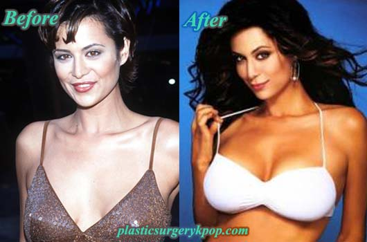 CatherineBellBoobJob Catherine Bell Plastic Surgery Before and After Facelift and Boob Job