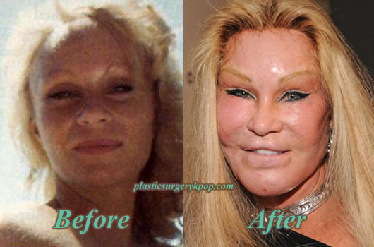CatwomanPlasticSurgery Catwoman Plastic Surgery Jocelyn Wildenstein Before After Pictures