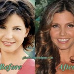 Charisma Carpenter Plastic Surgery Nose, Boobs Job Before After Pics
