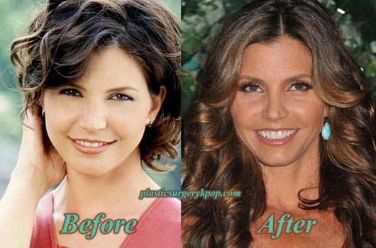 CharismaCarpenterPlasticSurgery Charisma Carpenter Plastic Surgery Nose, Boobs Job Before After Pics