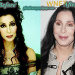 Cher Plastic Surgery Facelift, Botox Before and After Picture