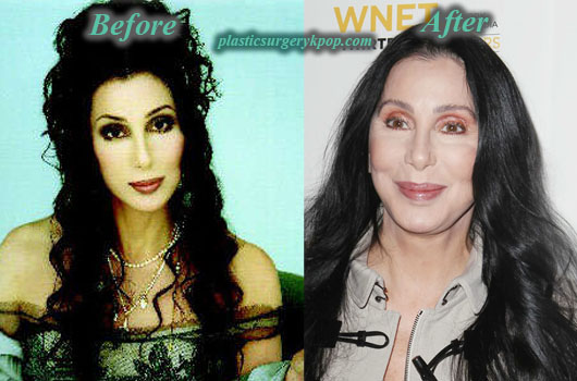 CherPlasticSurgery Cher Plastic Surgery Facelift, Botox Before and After Picture