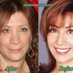 Cheri Oteri Plastic Surgery Before After Pictures