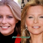 Cheryl Ladd Plastic Surgery Before After Pictures