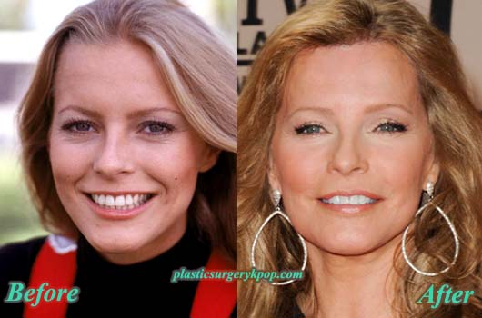 CherylLaddPlasticSurgery Cheryl Ladd Plastic Surgery Before After Pictures