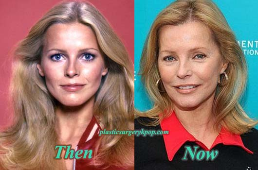 CherylLaddPlasticSurgeryPicture Cheryl Ladd Plastic Surgery Before After Pictures