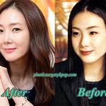 Choi Ji Woo Plastic Surgery Before After Pictures