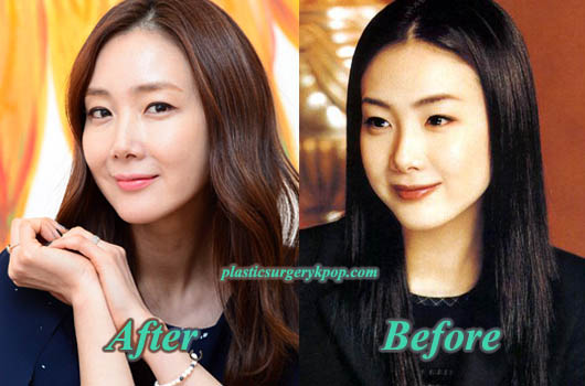 ChoiJiWooPlasticSurgery Choi Ji Woo Plastic Surgery Before After Pictures