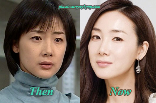 ChoiJiWooPlasticSurgeryPicture Choi Ji Woo Plastic Surgery Before After Pictures