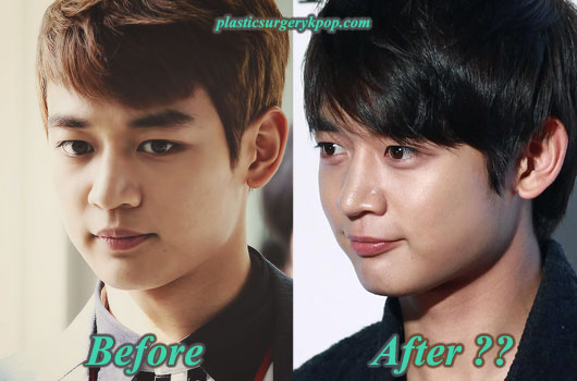 ChoiMinhoplasticsurgery Choi Minho Plastic Surgery After and Before Pictures