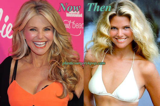 ChristieBrinkleyFacelift Christie Brinkley Plastic Surgery Before and After Pictures