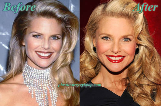ChristieBrinkleyPlasticSurgery Christie Brinkley Plastic Surgery Before and After Pictures