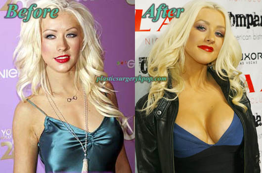 ChristinaAguileraBreastAugmentation Christina Aguilera Plastic Surgery Before and After Pictures