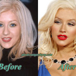Christina Aguilera Plastic Surgery Before and After Pictures