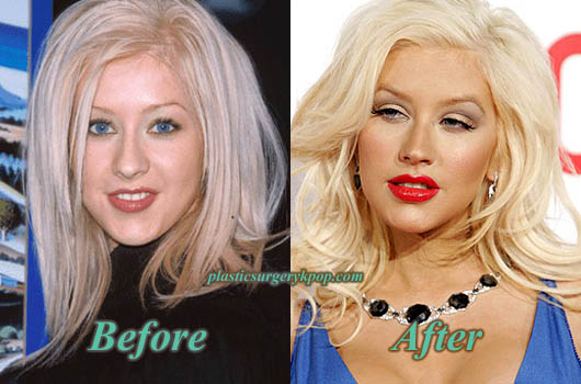 ChristinaAguileraPlasticSurgery Christina Aguilera Plastic Surgery Before and After Pictures