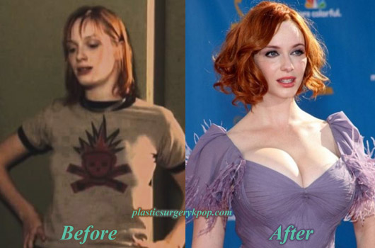 ChristinaHendricksBreastImplants Christina Hendricks Breast Implants Plastic Surgery Before After Pics