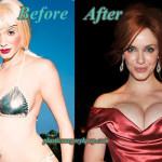 Christina Hendricks Breast Implants Plastic Surgery Before After Pics