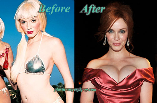ChristinaHendricksPlasticSurgery Christina Hendricks Breast Implants Plastic Surgery Before After Pics