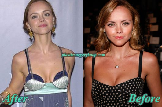 ChristinaRicciNoseJobandBoobJob Christina Ricci Plastic Surgery Before & After Pictures