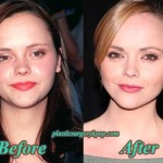 Christina Ricci Plastic Surgery Before & After Pictures