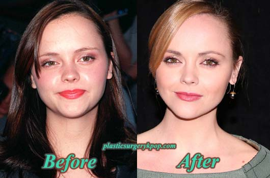 ChristinaRicciPlasticSurgery Christina Ricci Plastic Surgery Before & After Pictures