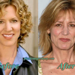 Christine Lahti Plastic Surgery Before After Photos