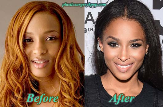 CiaraPlasticSurgery Ciara Plastic Surgery Before After Nose job, Breast Implants Pictures