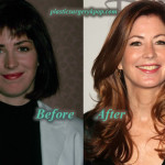 Dana Delany Plastic Surgery Before and After Botox Picture