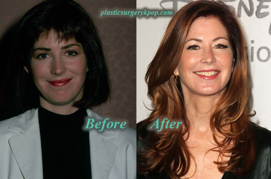 DanaDelanyPlasticSurgery Dana Delany Plastic Surgery Before and After Botox Picture