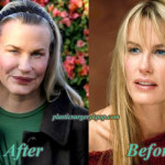 Daryl Hannah Plastic Surgery Gone Wrong Before After Pictures