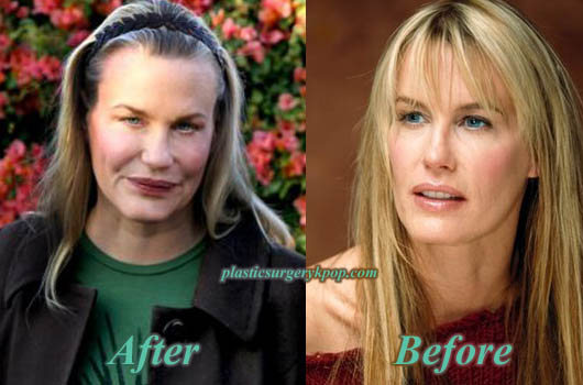 DarylHannahPlasticSurgery Daryl Hannah Plastic Surgery Gone Wrong Before After Pictures