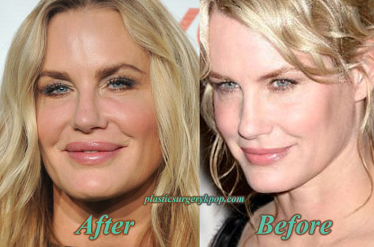 DarylHannahPlasticSurgeryGoneWrong Daryl Hannah Plastic Surgery Gone Wrong Before After Pictures