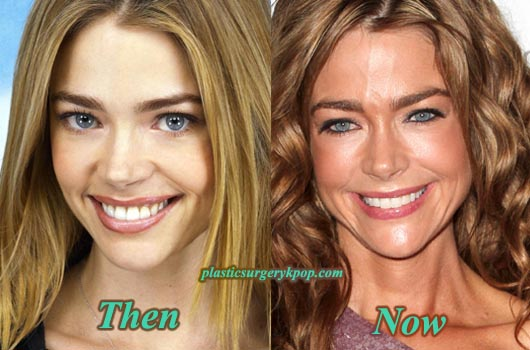 DeniseRichardsBeforeAfterPicture Denise Richards Plastic Surgery Admission Before and After Photos