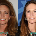 DianeLanePlasticSurgery 150x150 Diane Lane Plastic Surgery Before and After
