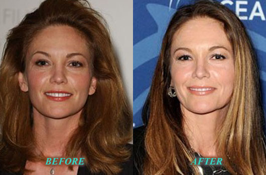 DianeLanePlasticSurgery Diane Lane Plastic Surgery Before and After