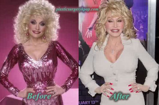 DollyPartonBreastImplants Dolly Parton Plastic Surgery Before and After Pictures