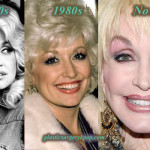 Dolly Parton Plastic Surgery Before and After Pictures