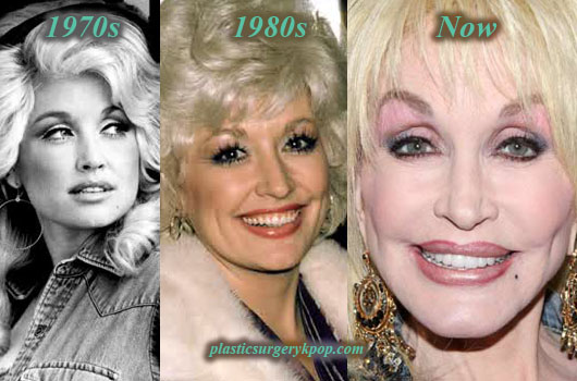 DollyPartonPlasticSurgery Dolly Parton Plastic Surgery Before and After Pictures