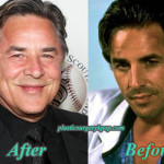 Don Johnson Plastic Surgery Before and After Pictures
