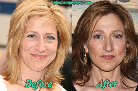 EdieFalcoBotox Edie Falco Plastic Surgery Before After Pictures