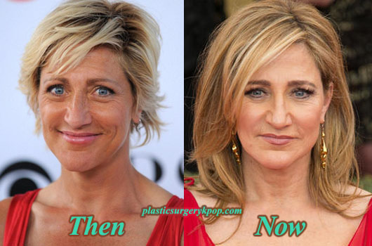 EdieFalcoPlasticSurgery Edie Falco Plastic Surgery Before After Pictures