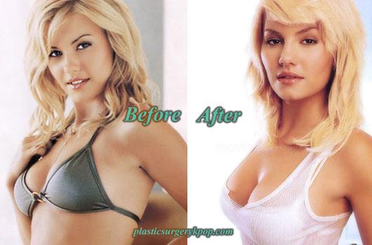 ElishaCuthbertBoosJob Elisha Cuthbert Plastic Surgery Nose Job, Boobs Job Before After Pics
