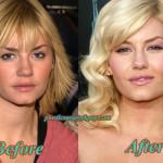 Elisha Cuthbert Plastic Surgery Nose Job, Boobs Job Before After Pics