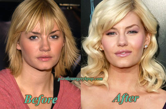 ElishaCuthbertPlasticSurgery Elisha Cuthbert Plastic Surgery Nose Job, Boobs Job Before After Pics