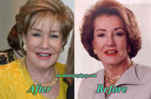 ElizabethDolePlasticSurgery Elizabeth Dole Plastic Surgery Before After Photos