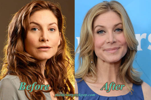 ElizabethMitchellBotoxNoseJob Elizabeth Mitchell Plastic Surgery Before and After Pictures