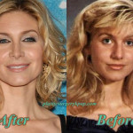 Elizabeth Mitchell Plastic Surgery Before and After Pictures