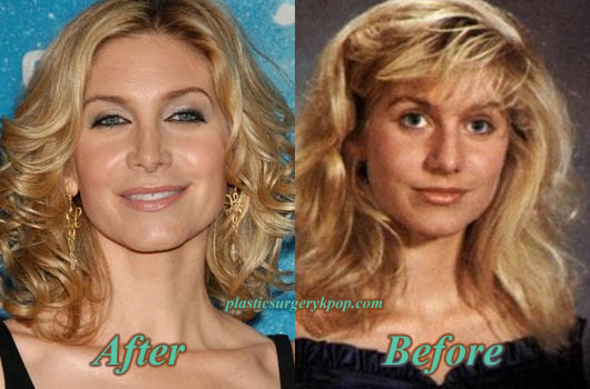 ElizabethMitchellPlasticSurgery Elizabeth Mitchell Plastic Surgery Before and After Pictures