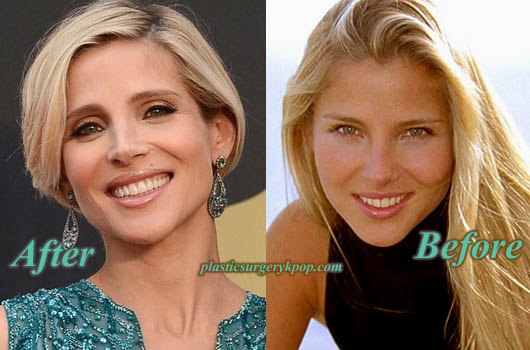 ElsaPatakyNoseJob Elsa Pataky Plastic Surgery Nose, Boobs Job Before and After Pictures