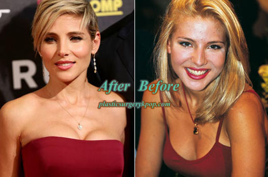 ElsaPatakyPlasticSurgery Elsa Pataky Plastic Surgery Nose, Boobs Job Before and After Pictures